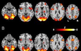تغییر فعالیت مغز با رواندرمانی متمرکز بر انتقال