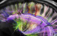 دیدگاه فیزیولوژیک در روانشناسی: تعریف و بررسی گستره مسائل فیزیولوژیک