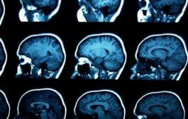 تغییرات مغزی مشترک در کودکان مبتلا اوتیسم، بیشفعالی و وسواس