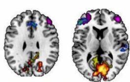 کشف تاثیر الگوهای اتصالات مغزی روی توانایی حافظه افراد
