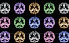 ساختارهای عصبی زیربنای شادکامی