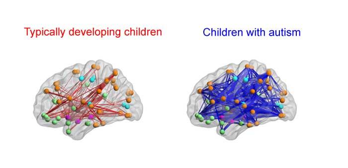اتصالات مغزی افراد ابتلا به اوتیسم
