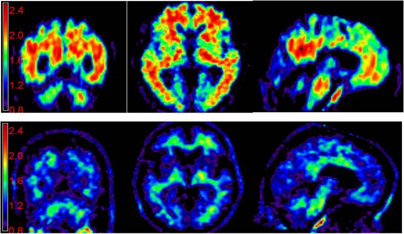 اسکن های مغزی و تشخیص اختلال های روانی